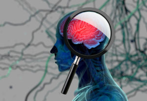 Are Brain Injuries Tied to Alzheimer's Disease? The Truth May Surprise You