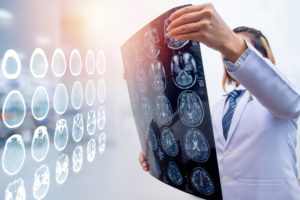 Can You Guess the 3 Most Common Causes of Brain Injury in California?
